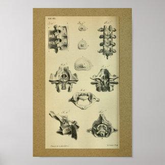 1850 Vintager Anatomie-Druck-spinale Wirbel Poster