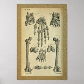 1850 Vintages Anatomie-Druck-Handhandgelenk Poster