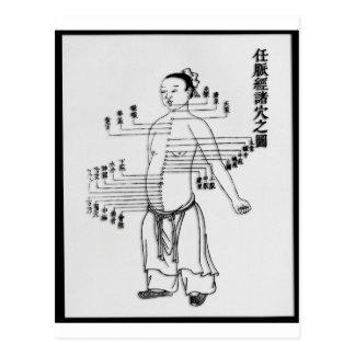 Diagramm der chinesischen Medizin Postkarte
