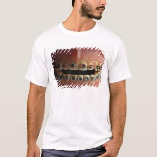 Ein zahnmedizinisches Modell und Zahnklammern T-Shirt