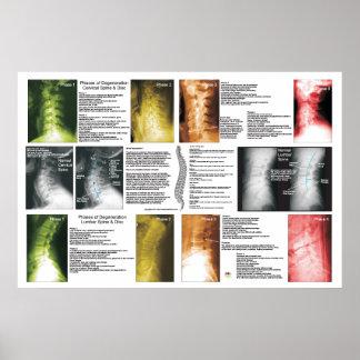 Phasen-zervikales lumbales spinales poster