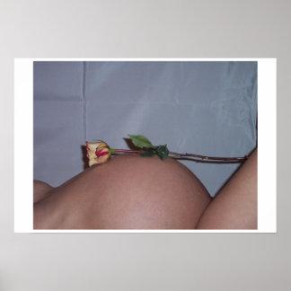 Rosen-Bauch Poster