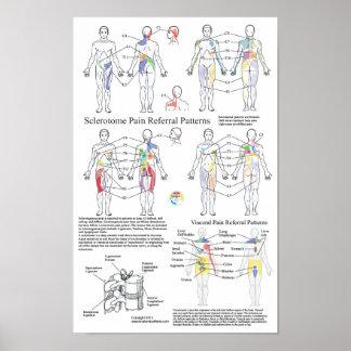 Sclerotome viszerales Schmerz-Empfehlungs-Diagramm Poster