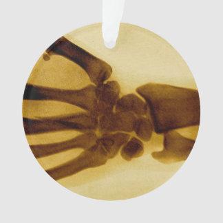 Vintager Sepia-menschlicher Handröntgenstrahl Ornament