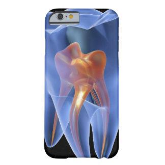 Zahn, transparenter Querschnitt eines Molars Barely There iPhone 6 Hülle