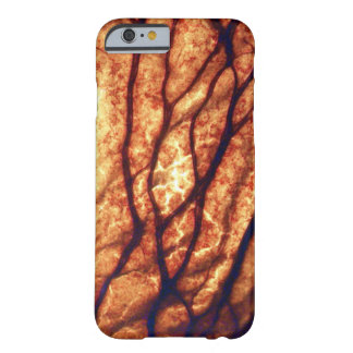 Zwiebel iPhone 6/6s Fall Barely There iPhone 6 Hülle